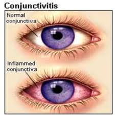 conjunctivita -1