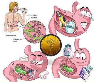 gastroenterocolita adulti